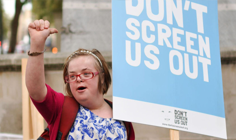 Woman with Down's syndrome calls for end to full term abortions for the condition
